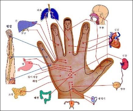 손과 수지침