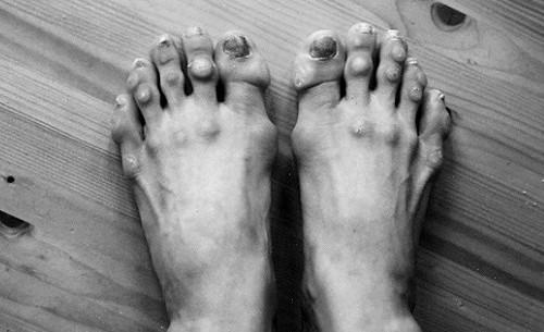 빛나는 영광 뒤에 상처로 얼룩진 발이 있었다!